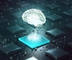 Deep-Learning in Radiology