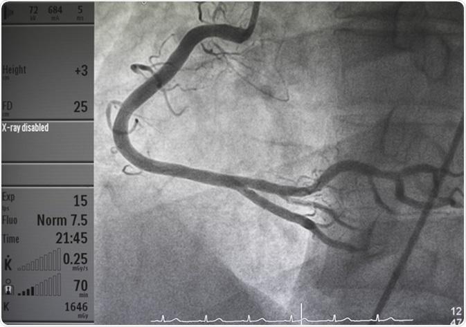 Coronary angiography. Image Credit: Pitchyfoto / Shutterstock