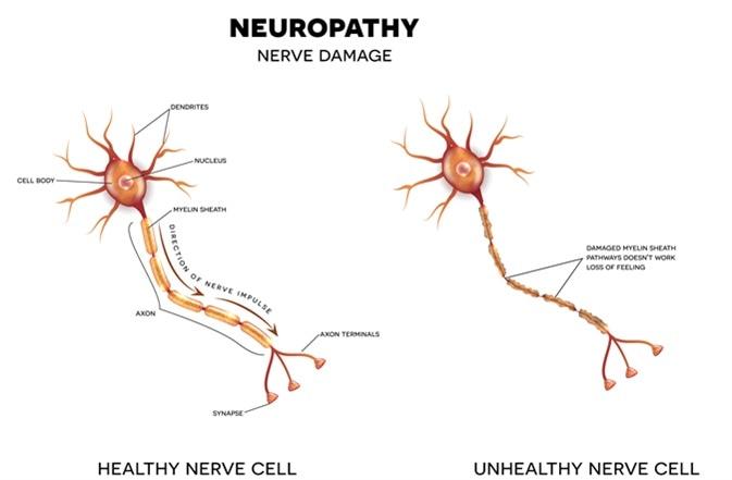 Neuropatía que es el daño de nervios. Haber de imagen: Tefi/Shutterstock