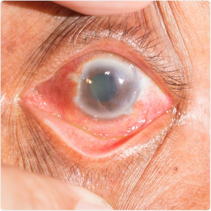 Close up of the acute angel closure glaucoma during eye examination. Image Credit: ARZTSAMUI / Shutterstock
