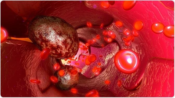 Cellule tumorali nell