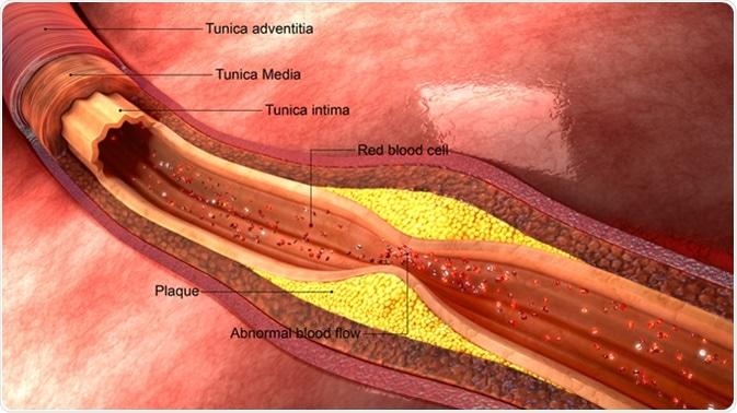 Atherosclerosis. Image Credit: sciencepics / Shutterstock
