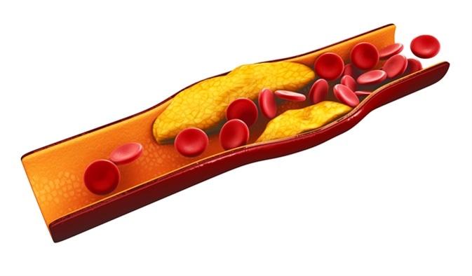 ilustração 3d dos glóbulos com acúmulo da chapa do colesterol. Crédito de imagem: Vencedor Josan/Shutterstock