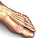 Genes cause gout not diet