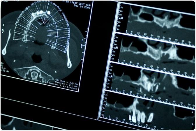 Tomografia dental do CT. Crédito de imagem: Flavio Massari/Shutterstock