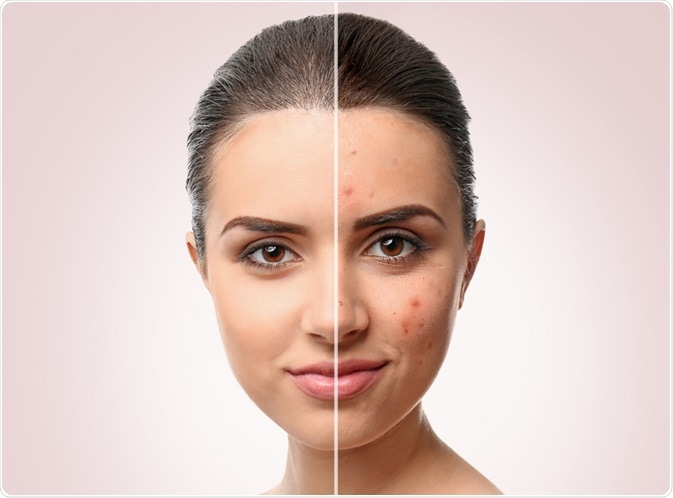 Woman with acne - by Africa Studio
