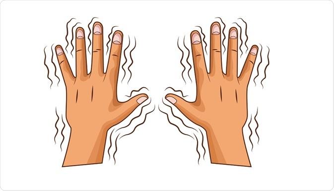 Tremors in hands - By Jemastock