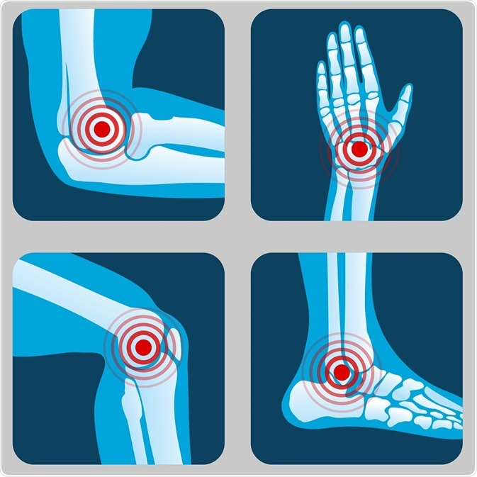 Joints that can be affected in arthritis - By MicroOne