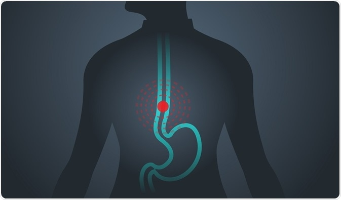 Diagram of man with esophageal cancer