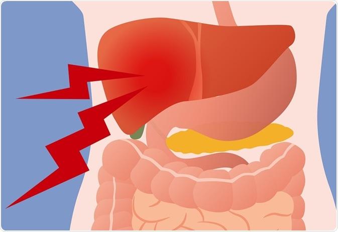 Pain in liver, coming from gallbladder - metamorworks