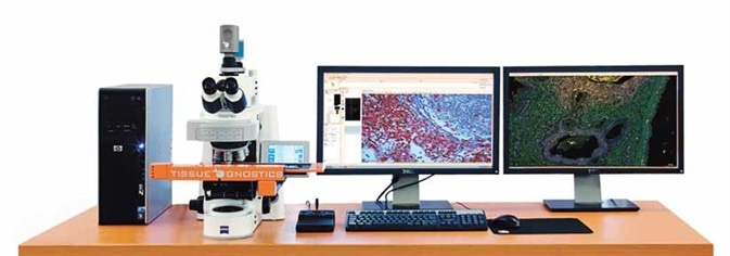 This new technology allows to better understand the molecular mechanisms of disease formation. This is required for choosing the optimal therapy for any given patient and to avoid that a patient receives an ineffective treatment.