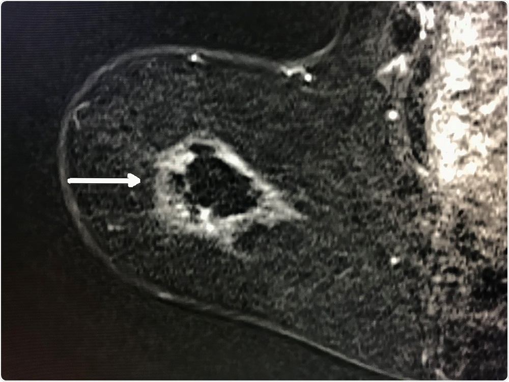 Breast cancer cells targeted in cyroablation - Radiological Society of North America