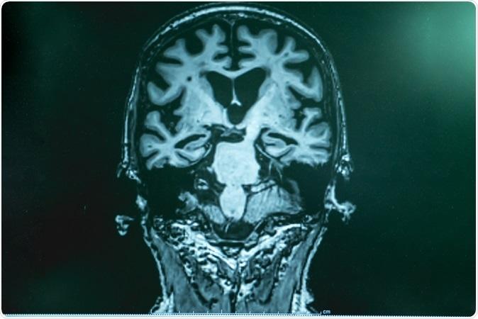 Enfermedad de Alzheimer con MRI. Haber de imagen: Atthapon Raksthaput./Shutterstock