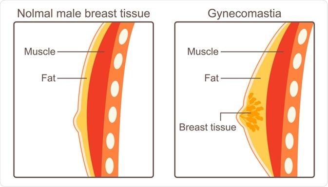 Diagram of gynecomastia - By CHEN I CHUN