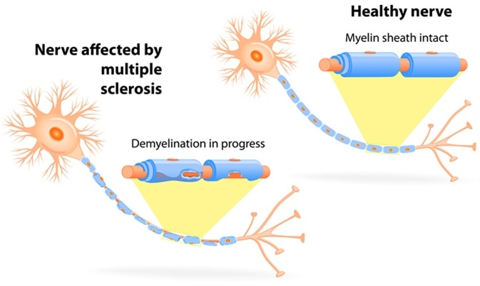 Nerve affected by multiple sclerosis. Image Credit: Designua / Shutterstock
