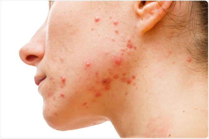 Acne skin. Image Credit: Ocskay Bence / Shutterstock