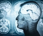 Human brain may stay active for hours after death