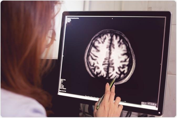 MRI brain of Dementia patient with left parietal atrophy asymmetry. Shutterstock / Atthapon Raksthaput