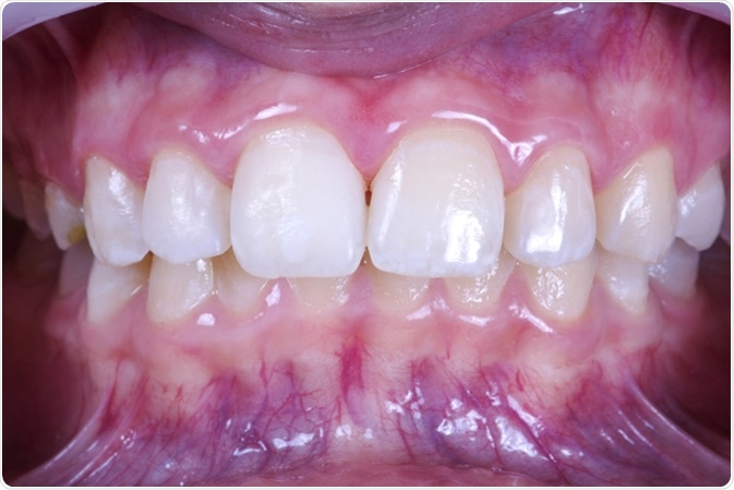 Local tooth enamel hypoplasia. Surface after remineralization. Image Credit: Eduard Tanga / Shutterstock