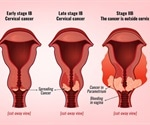 Minimally invasive surgery for cervical cancer may not be a good idea finds a pair of studies