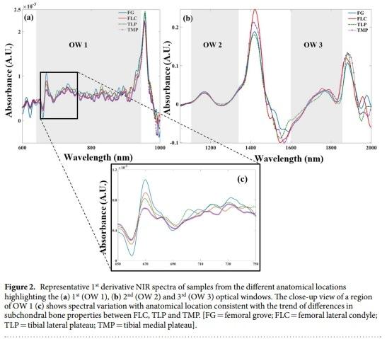 Representative NIR Spectra Bone Samples By Afara, Florea, et al. Characterizing human subchondral bone properties using near-infrared (NIR) spectroscopy, via Scientific Reports