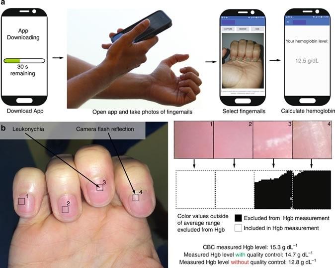 Puesta en vigor de un smartphone app para la hemoglobina de medición (Hgb). un paciente de A transfiere simple el app directamente sobre su smartphone, abre el app, obtiene una foto del smartphone de las bases de su uña, y sin la necesidad de cualquier muestreo de la sangre o las herramientas adicionales del agregación del smartphone o externas de la calibración, miden cuantitativo los niveles de Hgb de la sangre. El paciente primero toma una imagen de sus uñas, y en seguida es incitado por el app para golpear ligeramente en la pantalla para seleccionar las regiones de interés correspondiente a los nailbeds, y un resultado entonces se visualiza en la pantalla del smartphone. Las imágenes son capturas de pantalla y fotos de la operación real de este app. b como las imágenes del smartphone con irregularidades de la uña tales como reflexiones de la llamarada de la cámara o el leukonychia pueden afectar a las mediciones niveladas de Hgb, un algoritmo del control de calidad integrado dentro de la medición app del nivel de Hgb descubre y omite esas irregularidades para preservar integridad y exactitud de la medición.