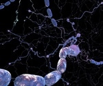 Study reveals mechanism behind failed remyelination in MS