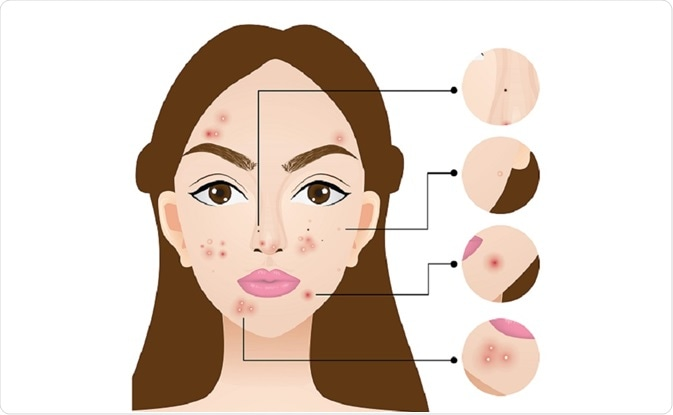 Illustration of woman showing the types of spots that can occur in acne - by charless