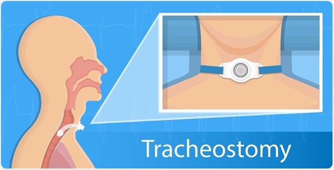 Diagram illustrating a tracheostomy - By rumrua