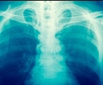 X-rays may double the risk of cancer for obese patients