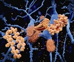 Alzheimer's could possibly be spread via contaminated neurosurgery