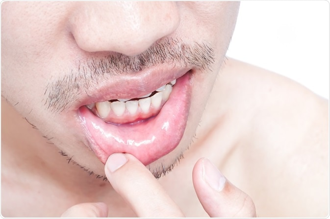 hpv herpes boca paraziti intestinali la bebelusi simptome