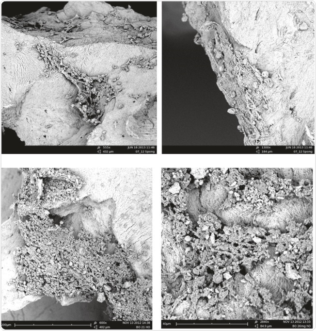 examples of SEM of human osteoblasts seeded on cancellous bone