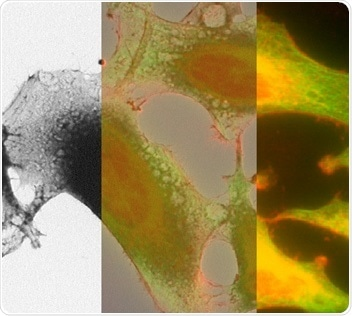 Correlated light and electron microscopy image of HeLa cells.