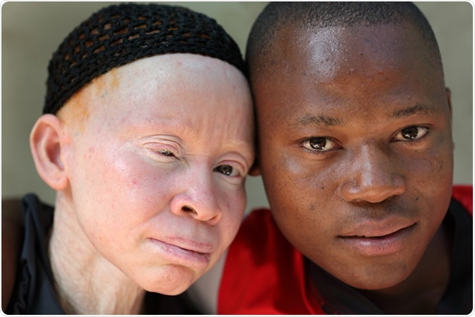 Unidentified albino mother and son. Image Credit: By Dietmar Temps / Shutterstock