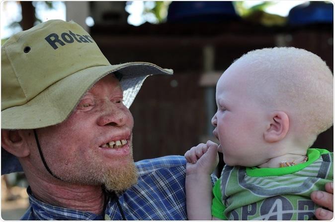 UKEREWE - TANZANIA - JULY 2, 2015: Unidentified albino father and son. Image Credit: Dietmar Temps / Shutterstock