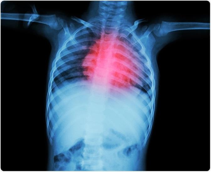 Cardiopathie rhumatismale. Crédit d