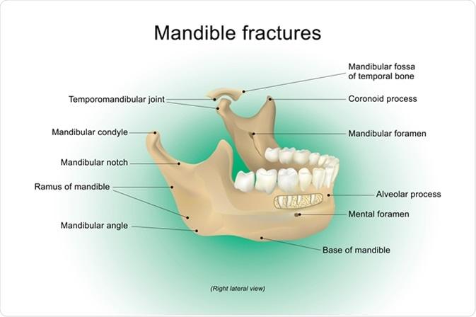 La fracture de la mandibule, également connue sous le nom de fracture du maxillaire, est une interruption par l