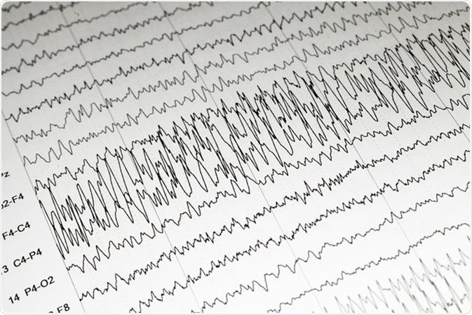 EEG wave background, Status epilepticus wave form. Image Credit: Chaikom / Shutterstock