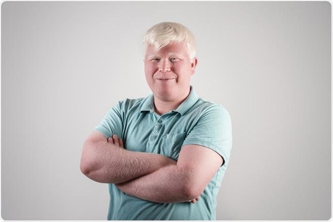 Verticale de jeune homme albinos. Crédit d