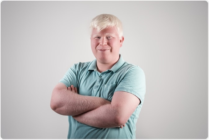 Retrato del hombre joven del albino. Haber de imagen: Sondem/Shuttertock