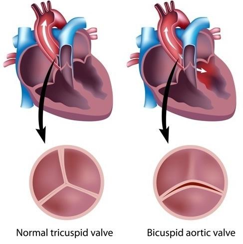 Difetti di valvola cardiaca. Credito di immagine: Media medici/Shutterstock di Alila