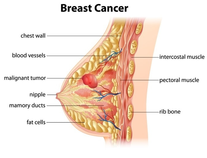 Cross section showing formation of breast cancer. Image Credit: BlueRingMedia / Shutterstock