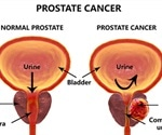 Theresa May to launch £75m drive against prostate cancer
