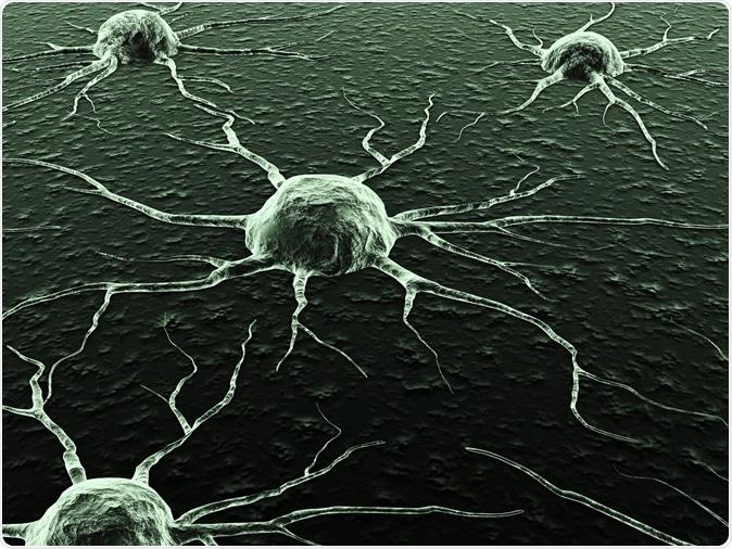 Cellules cancéreuses. Crédit d