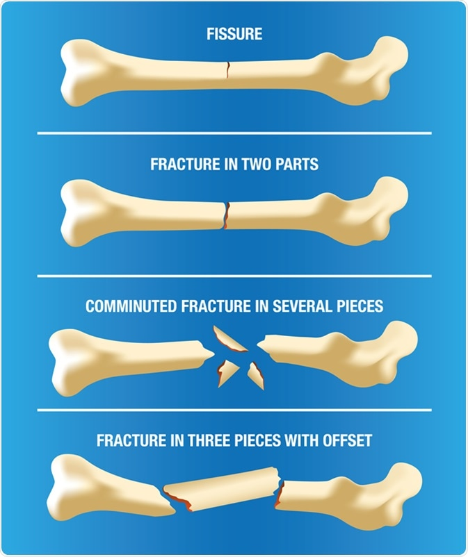 Illustration of a bone skeleton illustrating various types of fractures. Image Credit: Luciano Cosmo / Shutterstock