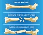 Broken Bone First Aid