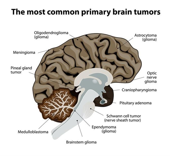 Common primary brain tumors. Image Credit: Designua / Shutterstock