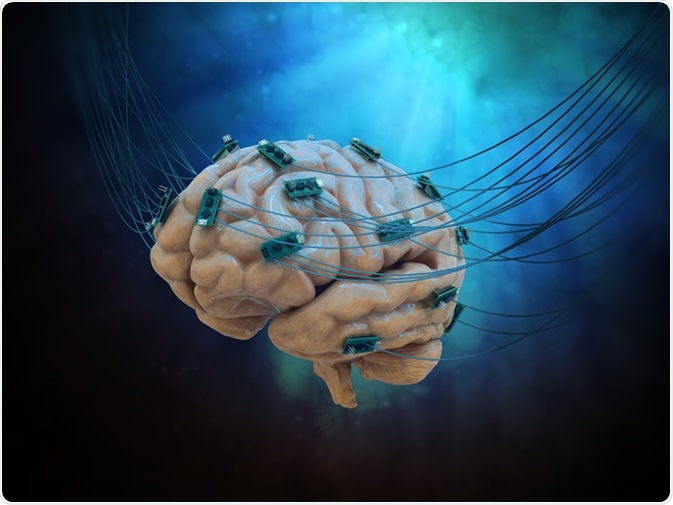 Human brain connected to cables and computer chips. Image Credit: Mopic / Shutterstock