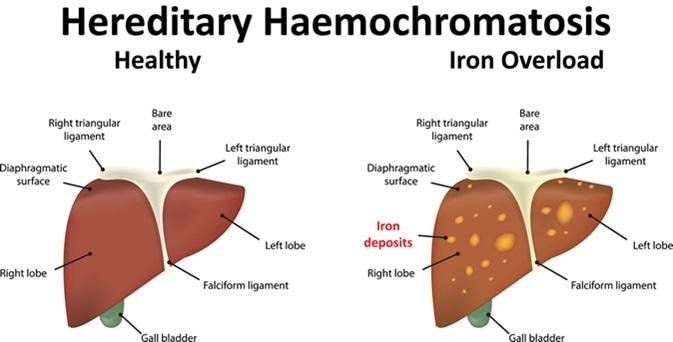 Hereditary Haemochromatosis. Image Credit: Joshya / Shutterstock
